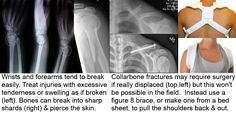 Inflicting & Treating Collarbone Fractures for Preppers