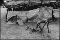 © James Nachtwey, Sudan, Famine victim in a feeding center, 1993