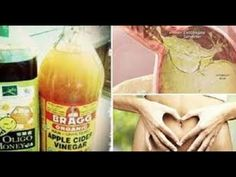 If You Drink Apple Cide Vinegar And Honey Every Morning, THIS Is What Ha...