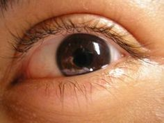 Regrowing Eyelashes thumbnail