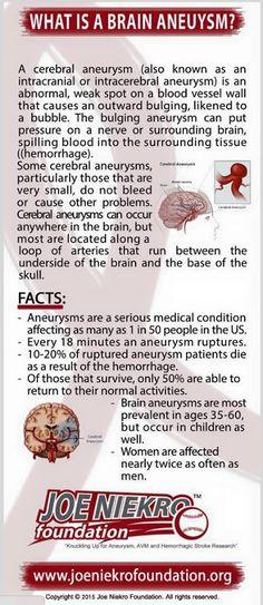 What is a brain aneurysm