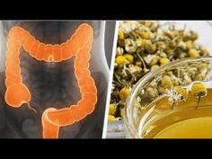 Cleanse Your Colon with Medicinal Herbs — Step To Health Healthy Beauty, Health And Beauty, Colon Cleansers, Natural Beauty Remedies, Natural Antibiotics, Purifier, Ulcerative Colitis, Home Treatment, Medicinal Herbs