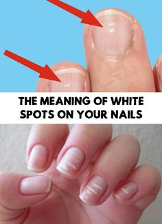 You may have noticed more than once some small white spots appearing on your nails. Find out The Meaning Of White Spots On Your Nails!