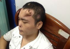 This 22-year-old Chinese man, identified only as Xiaolian, has undergone an unusual treatment following a traffic accident that left his nose deformed after an infection. Surgeons at the Fujian province hospital where he is being treated sculpted a new one from rib cartilage, and grew it on his forehead. The replacement nose is thought to be ready for transplant soon.