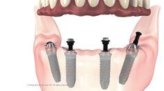 All on 4 Dental Implants Cleveland Secure Loose Dentures with Dr. Implant Dentistry, Dental Implants, Facial Aesthetics, Missing Teeth, Dental Hygiene, Cleveland, Ohio, Bridge, Medicine