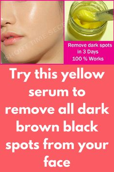 Acne Remedies Try this yellow serum to remove all dark brown black spots from your face Amazing home remedy for removing Dark spots in 3 days.Remove Dark Spots from your face using this remedy.In 3 DAYS – Remove DARK SPOTS, PIGMENTATION, BLACK SPOTS Black Spots On Face, Brown Spots On Hands, Spots On Legs, Dark Spots, Sunspots On Face, Face Moles, Skin Moles, Spots On Forehead, Dark Under Eye