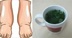 This Powerful Tea Is The Best Natural Remedy For Swollen Legs - Perfect Harmony 365 Healthy Tips, How To Stay Healthy, Healthy Recipes, Healthy Food, Edema, Unhealthy Diet, Plank Workout, Varicose Veins, Menstrual Cycle