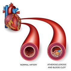 The prevalence of cardiovascular conditions is increasing day by day, and more people are dying from them. One of the key risks for developing a cardiovascular disease is clogged arteries.