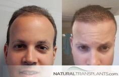 Baldness | Hair Transplant Before And After