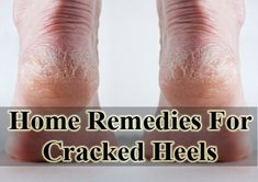 Cracked heels can be aquired due to lack of moisture and thick dead skin. Learn  the natural remedies for cracked heels, so your feet look their best. http://www.extremenaturalhealthnews.com/home-remedies-for-cracked-heels/