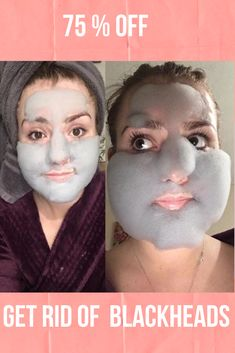 Get Rid of Blackheads with our Charcoal Blackhead Mask. This Carbonated Bubble Clay Charcoal Blackhead Mask is both a deep-cleansing makeup remover like a homemade blackhead cream! It's formulated with key ingredients like charcoal powder, green tea extracts and collagen. Our Original Charcoal Blackhead Mask. 75 % Off  #blackheadsremovalmask #HomeMadeBlackhead #blackheadsremovalmaskproducts  #CharcoalBlackheadMask #homemadeblackhead #charcoalblackheadmask #blackheadsremovalhomemade #blackhead Best Blackhead Mask, Best Blackhead Treatment, Blackhead Remover Homemade, Anti Aging Treatments, Blackheads Removal Cream, Get Rid Of Blackheads, Carbonated Bubble Clay Mask, Anti Aging Mask, Younger Skin