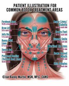 Botox Forehead, Botox Face, Botox Injection Sites, Botox Injections, Botox Fillers, Dermal Fillers, Relleno Facial, Facial Anatomy, Brain Anatomy