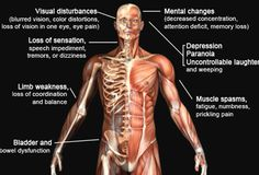 Illustration displaying the areas affected by the symptoms of multiple sclerosis.