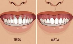 Gingivitis is a common problem for many people and it is manifested by red, swollen gums, and bad breath. If it is left untreated, it can cause periodontitis. The reason for this condition can be: - Genetic predisposition - Hormonal changes Beauty Makeup Tips, Beauty Hacks, Makeup Hacks, Health And Fitness Tips, Health And Wellness, Healthy Life, Healthy Living, Swollen Gum, Before After Weight Loss