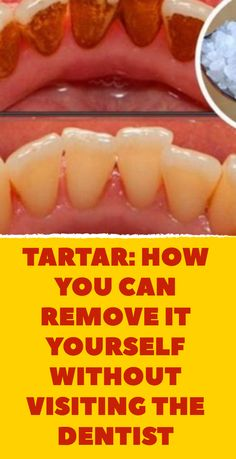 Beauty Discover Tartar: how to remove it without a dentist. Tartar: how to remove it without a dentist. Dental Health Oral Health Dental Care Health Care Health Facts Remedies For Tooth Ache Dental Cosmetics Receding Gums Oral Surgery Tartar Removal, Dental Cosmetics, Receding Gums, Oral Surgery, Oral Hygiene, Teeth Cleaning, Oral Health, Health Facts, Dental Health