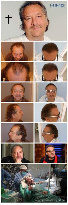 Bajor Imre - 4000 hajszál beültetése - HIMG Klinika  Bajor Imre (†) hajbeültetése során egy nap alatt több mint 4.000 hajszálat sikerült átültetni a HIMG Hajklinikán speciális hajbeültetési módszerünkkel. A színész – humorista végig jól viselte a beavatkozást, bár mint maga is bevallotta, nem igazán szereti az orvosi beavatkozásokat.  http://hajgyogyaszatszeged.hu/