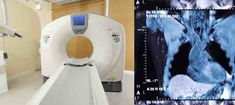 The Computed Tomography scanner is based on medical x-ray imaging and the next generation of CT imaging will use low radiation dose. Radiation Dose, Nuclear Medicine, Magnetic Resonance Imaging, Radiation Therapy, Medical Imaging, Radiology, Electrical Engineering, Ultrasound, Angles