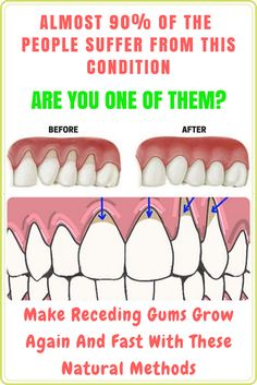 MAKE RECEDING GUMS GROW AGAIN AND FAST WITH THESE NATURAL METHODS