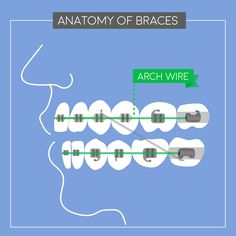 BRACES, PIECE BY PIECE: Here's the archwire! It's the track that guides the direction teeth move.