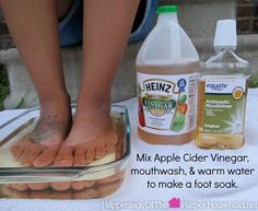 Forrest Forrest 'Lemin' Heinz Vinegar (ACV) mixed with mouthwash & water makes an awesome foot soak and can help treat toenail fungus. Heinz Apple Cider Vinegar, Heinz Vinegar, Toenail Fungus Remedies, Toenail Fungus Treatment, Treating Toenail Fungus, Home Remedies, Natural Remedies, Health Remedies, Health