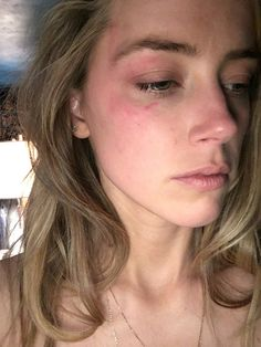 The next day pics the bruise was gone????????   Police Report Indicates Amber Heard May Be Lying About Allegations Against Johnny Depp
