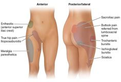 Radiating pain in lower back, hips, pelvis, and thighs, and their causes. Awesome picture and very informative!!! :o)