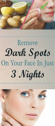 Try this great solution and remove Dark Spots on your Face in just 3 night .. - Read & Repin Follow Us