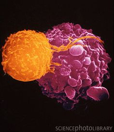 Immune system fighting a cancer cell. A killer T-lymphocyte (orange) inducing a cancer cell to undergo Programmed Cell Death.