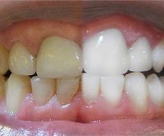 Unbelievably Simple Trick Erases Teeth Stains Over Night