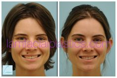 This young lady had a mole removed from her upper lip and is shown before and six months after her procedure. Mole Removal, Upper Lip, Young Women, Dallas, Facial, How To Remove, Lips, Facial Care, Face Care