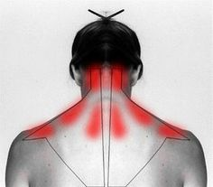 Acupuncture For Back Pain Learn why it hurts and how to self cure your stiff neck and shoulder pain. - With these gentle daily exercises, as well as the help of gravity inversion, you can improve your posture and ease your neck or shoulder pain. Health And Beauty Tips, Health Tips, Health And Wellness, Health Fitness, Beauty Tricks, Health Benefits, Natural Cures, Natural Healing, Health Remedies