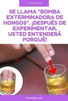 Hongos uñas remedios