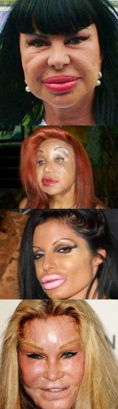 "When Plastic Surgery Fails ...And they're supposed to be ""beautiful""??"