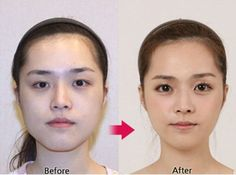 Korean Plastic Surgery Before  Top images found online