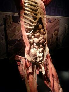 Pin on Body Worlds dead body art Pin on Body Worlds dead body art Human Anatomy Art, Human Anatomy And Physiology, Body Anatomy, Human Body Exhibit, Gunther Von Hagens, Bodies Exhibit, Post Mortem Pictures, Real Bodies, Medical Science