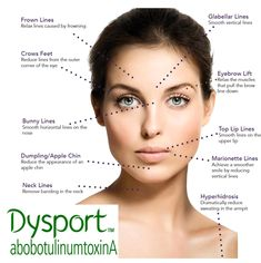 Image result for botox injection sites diagram makeup pinterest when you are looking to rejuvenate your face and fill in indentations lines and wrinkles that have you feeling older than you are or have eye area that ccuart Image collections