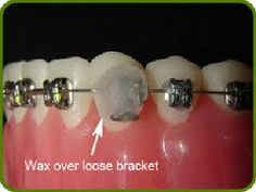 Cover a broken bracket with wax until you can get an appointment to keep the bracket from bothering your cheek or lips.