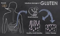 Celiac disease is an autoimmune disorder triggered by the ingestion of the protein gluten. Gluten causes chronic inflammation and damage to the intestinal cells lining the small intestine. Celiac Disease Causes, Celiac Symptoms, Gluten Free Shopping List, What Is Gluten, Abdominal Bloating, Autoimmune Diet, Gluten Intolerance, Gluten Free Diet, Reduce Inflammation