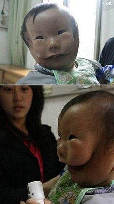 Chinese baby has birth defect that makes him permanently look like he has a mask on.