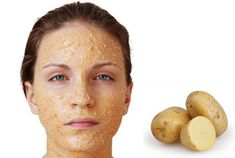 Potato Maskis a natural and homemade type of skin care that has many benefits to the skin. Potato contains catecholase enzyme that reduces dark spots, sun spots and acne scars on the skin. Contains potassium to moisturize & soften skin Potato has vi Potato Face Mask, Vitamin C And Zinc, Potato Juice, Under Eye Puffiness, Tighter Skin, Hoe Tips, Face Skin Care, Skin Elasticity, Acne Scars