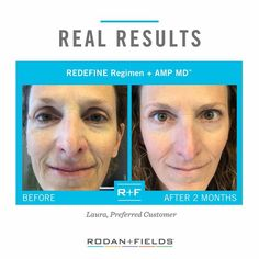 Shop the anti-aging REDEFINE line from Rodan + Fields and see real results! ------------------------------------------------- Great for aging skin, fine lines, wrinkles, and minimizing appearance of pores! Redefine Regimen, Rodan And Fields Redefine, Skin Care Regimen, Anti Aging Treatments, Best Anti Aging, Anti Aging Skin Care, Aging Backwards