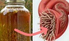 Mnohí experti na zdravie zcelého sveta súhlasia, že ide o najsilnejšie prírodné antibiotikum, aké si môžete sami doma pripraviť. Určite ho vyskúšajte – dokáže si poradiť stakmer každou infekciou vľudskom organizme anavyše usmrcuje aj parazity, ktoré sa môžu nachádzať včrevách či iných miestach vtele. Čo všetko dokáže toto prírodné antibiotikum