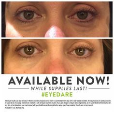 This JUST in... Someone else got WOW'd. Who is next? Do you want to try this or do you know someone that would? www.woweyecream.com