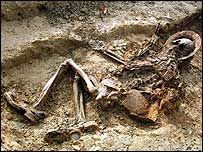 WW1 Dead Bodies | Body of a WW1 British soldier unearthed in France