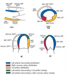 17 segment model of left ventricle in echo 200 free medical wall perfusions ccuart Image collections