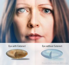 What You Need to Know About Cataract Treatments: ✓ When to consider Treatment  ✓ Cataract Treatment Options ✓ Effective treatment for cataracts