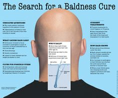 The Search for a Baldness Cure - WSJ.com [Infographic]