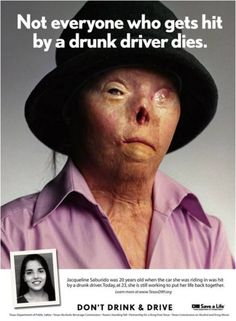 Jacqueline Saburido was hit by a drunk driver in Austin, Texas. She was pinned inside the vehicle as it caught on fire, leaving her with severe burns over 60 percent of her body. Really makes you think. Dont Drink And Drive, Drunk Driving, Distracted Driving, Driving Safety, Driving School, Branding, Marketing, In This World, Creative Advertising