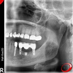 Que sont vraiment les Implants Dentaires? Ce sont des piquets métalliques posés chirurgicalement en dessous des gencives sur l'os des maxillaires. Après leur pose, il est possible de fixer des dents au-dessus, dont le processus sera accompagné par un médecin-dentiste.  ………………… www.pnid.fr #dentiste #implants #sourire #clinique 