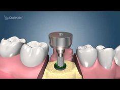 implant dentar Bucuresti, cabinet stomatologic sector 2, Obor ...     http://www.dentist-who.ro